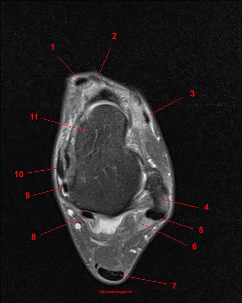 MRT der Fußgelenk: T2-gewichteten FATSAT axialen Schnitte