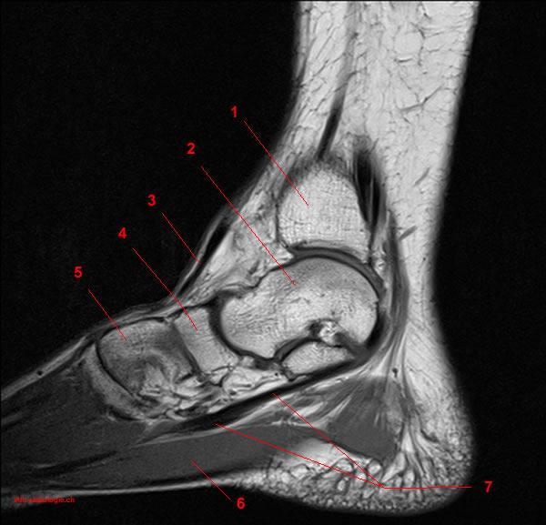 MRT der Fußgelenk: Anatomie