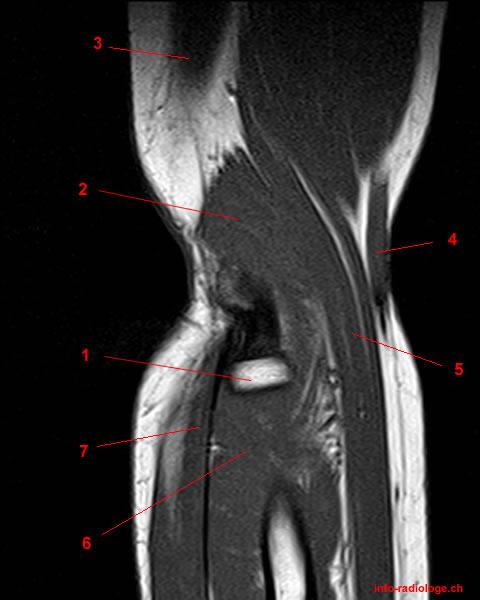 MRT der Ellbogen: detaillierte Anatomie