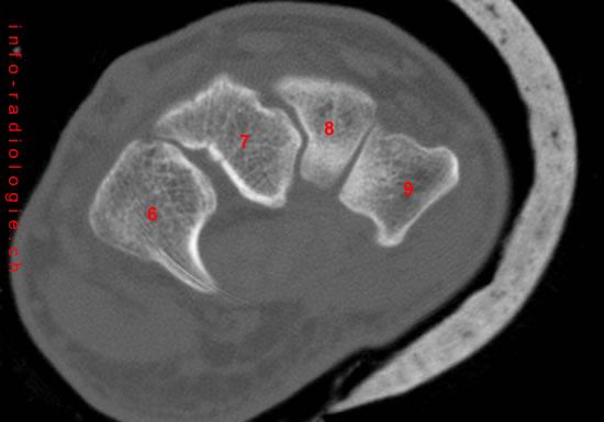 Axial Rekonstruction (CT Handgelenke)