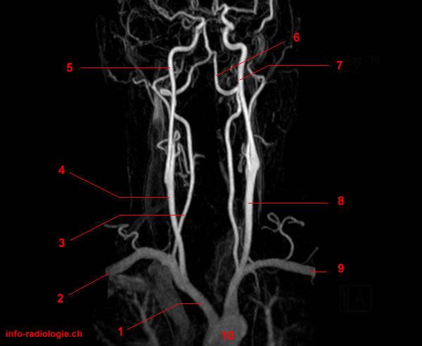 MR-Angiographie der Halsgefässe (Carotis / Vertebralis)