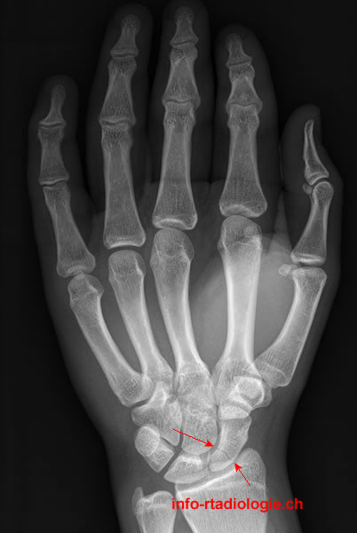 Radiographie De La Main