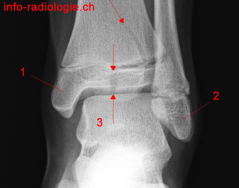 fracture trimalléolaire cheville