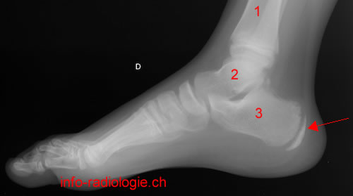 Maladie de sever radiographie for Douleur interieur pied droit