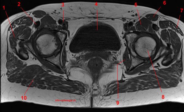 Anatomia Dell Anca Risonanza Magnetica Con Legenda