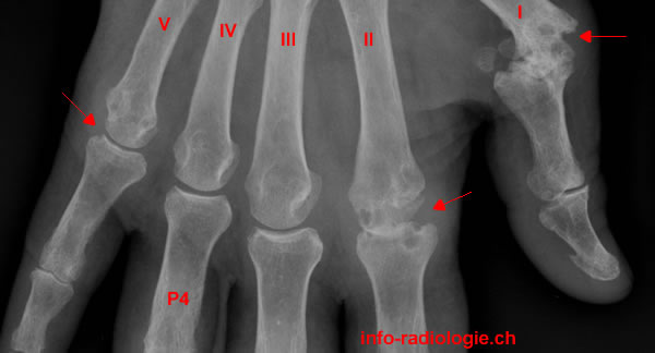 Comparatif Boswellia - Asthme du genou, ou gonArthrite : vers un traitement ...