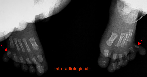 Polydactylie post-axiale (pied). Image 1