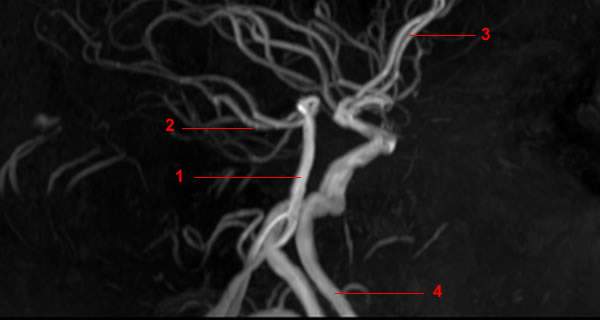 MR-Angiographie der Hirnversorgende Gefäße (Circulus arteriosus ...