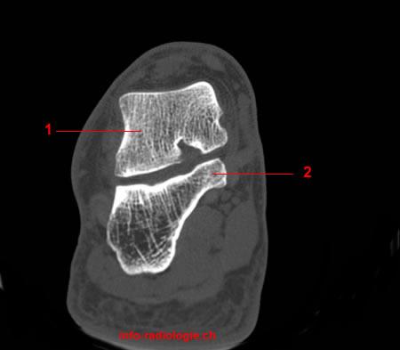 coronale Rekonstruktion (CT des Sprunggelenkes & Fuss)